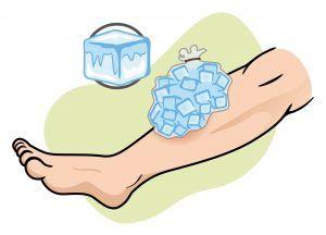 Ice compress on leg.