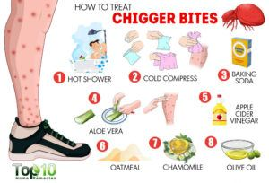 This picture shows 8 ways to treat chigger bites.