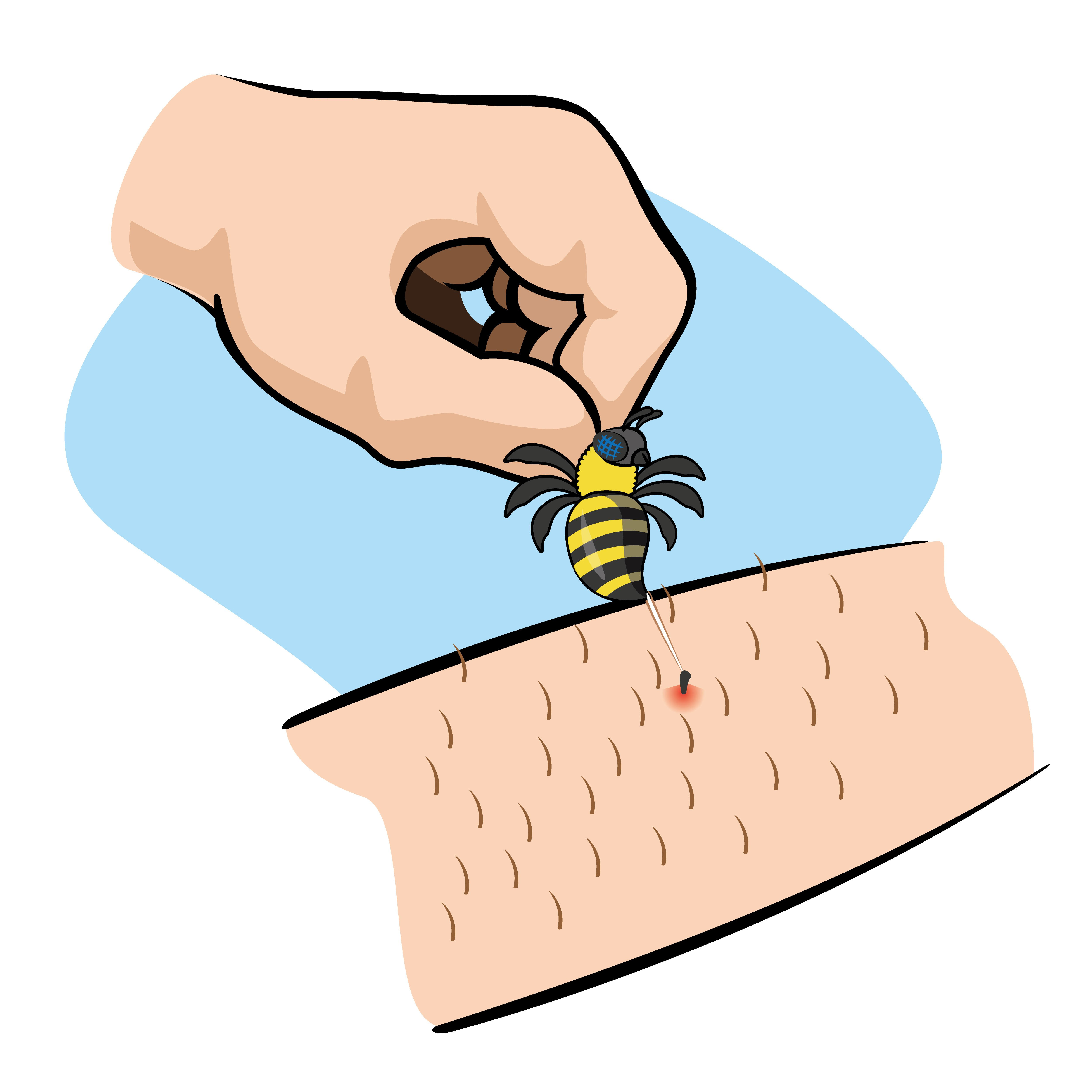 Wondrous How To Treat A Bee Sting Fast And Safely A Complete Guide Interior Design Ideas Tzicisoteloinfo