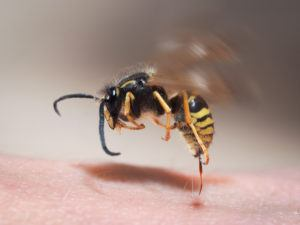 Wasp sting pulls out of human skin.