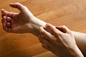 Man scratching on hand