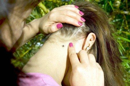 Tick bite on woman's neck