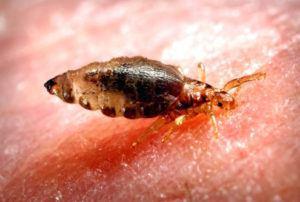 Body lice under skin