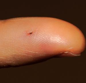 Rat bite on finger