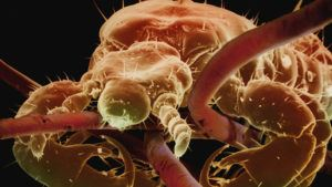 Lice infection on head