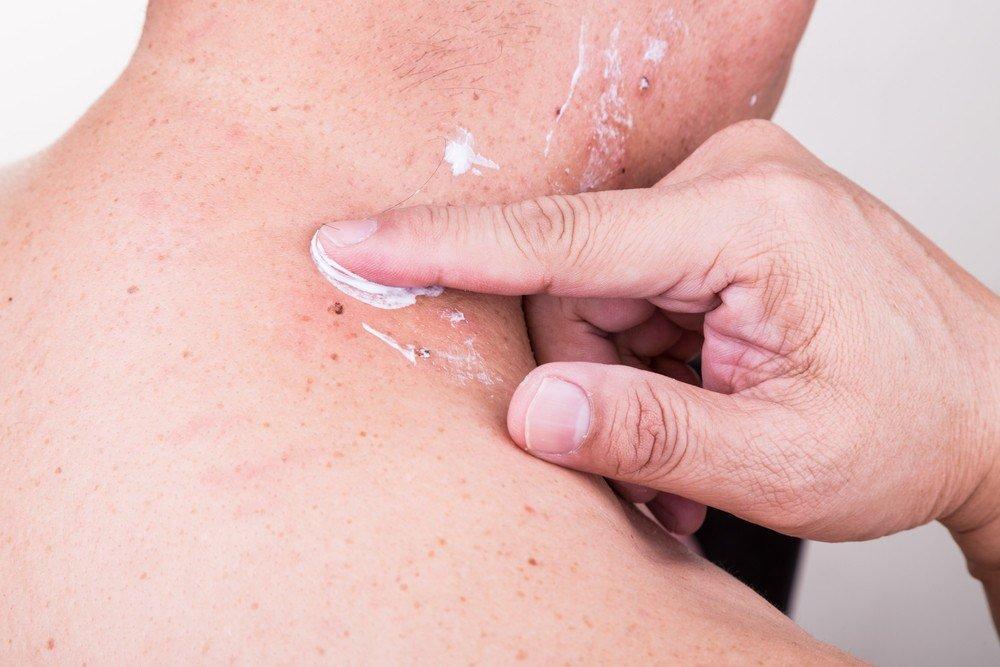 Man applying antibiotic cream onto wound.