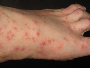 Looks of earwig bites on human's foot.