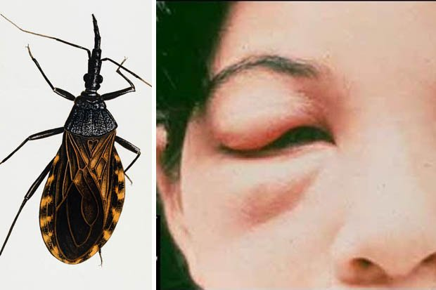 Assassin Bug Suck Blood